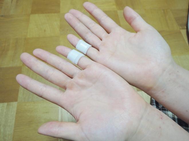 アトピーの改善に効果がある小指湿布を試してみました。
